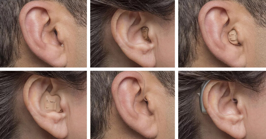 Six types of hearing aids